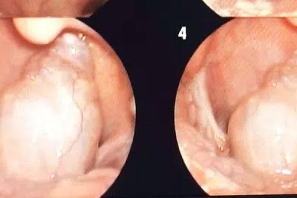 Hiếm gặp: Bệnh nhi 7 tuổi mắc khối u lớn vùng hạ họng-1