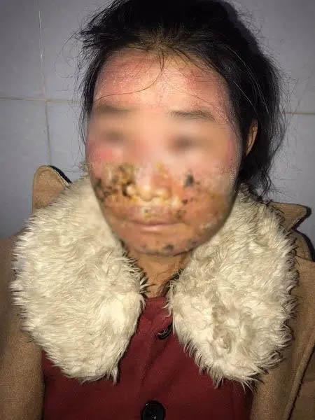 Dùng kem trộn mua trên mạng về bôi, 1 ngày sau cô gái 28 tuổi bị lở loét, chảy dịch, sưng phù mặt-1