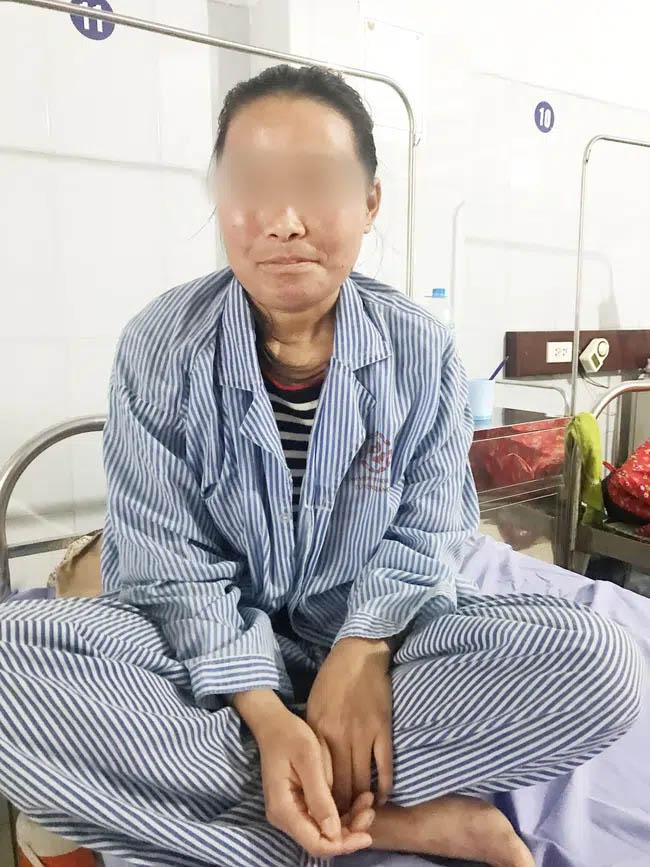 Dùng kem trộn mua trên mạng về bôi, 1 ngày sau cô gái 28 tuổi bị lở loét, chảy dịch, sưng phù mặt-3