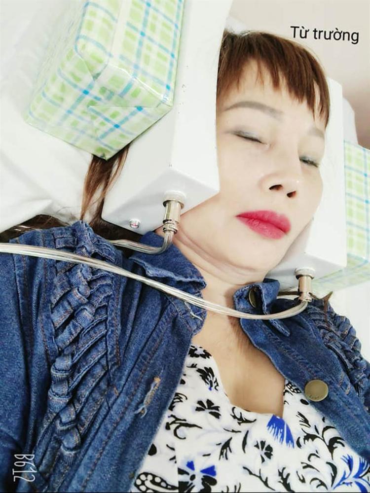Cô dâu Cao Bằng gây sốc khi lộ cằm nhọn hoắt như muốn xuyên thủng vạn vật-6