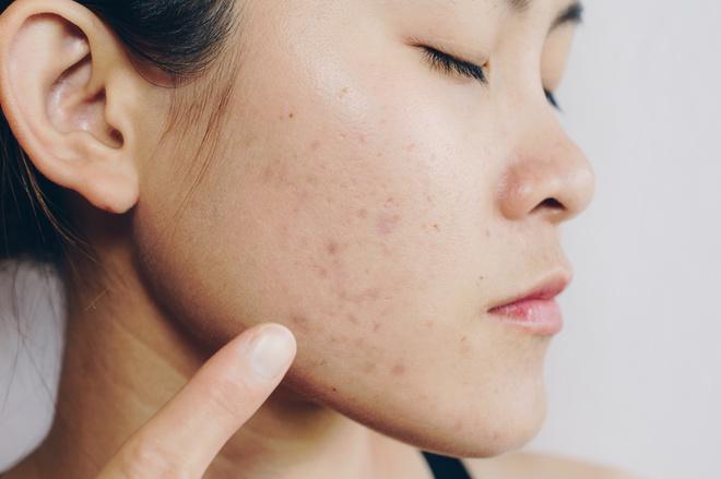 Làn da của bạn sẽ ra sao khi đi ngủ không tẩy trang?-4