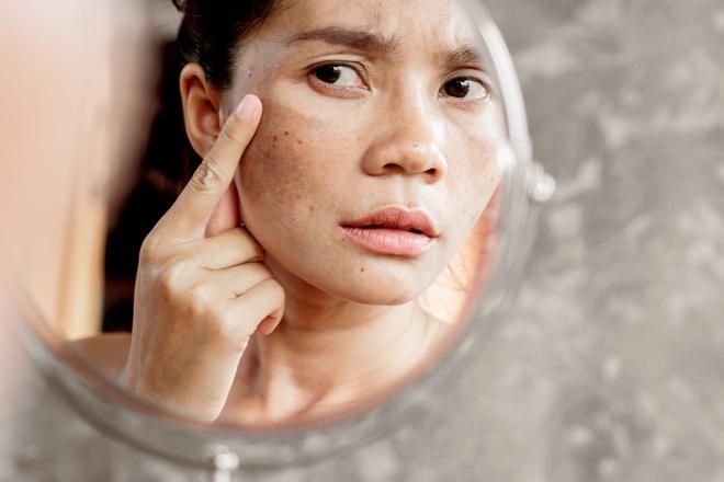 Làn da của bạn sẽ ra sao khi đi ngủ không tẩy trang?-6