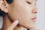 Làn da của bạn sẽ ra sao khi đi ngủ không tẩy trang?