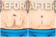 10 mẹo làm săn chắc da sau khi chị em giảm cân hoặc mang thai