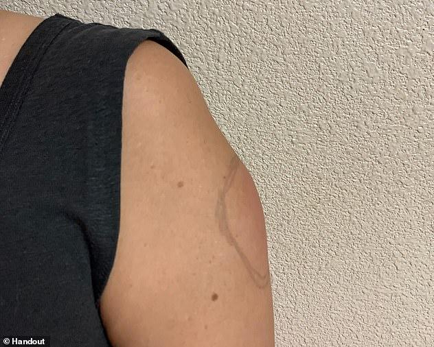 Cánh tay COVID - tác dụng phụ hiếm gặp sau tiêm vaccine COVID-19 mới được báo cáo-3