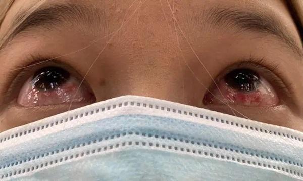 Đeo kính áp tròng làm đẹp dịp Tết, cô gái trẻ ngậm trái đắng khi phải đến viện điều trị viêm giác mạc-3