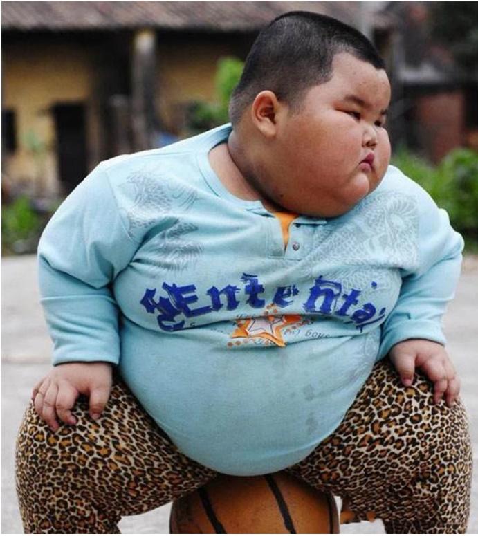 Bé trai 5 tuổi đã nặng 60kg, bị gan nhiễm mỡ nặng, sau khi thăm khám bác sĩ ngán ngẩm vì cách cho ăn của cha mẹ-1