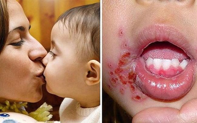 Bé gái 18 tháng tuổi bị nhiễm vi rút sinh dục từ nụ hôn của mẹ, cảnh báo người lớn không hôn trẻ trong 9 tình huống này-2