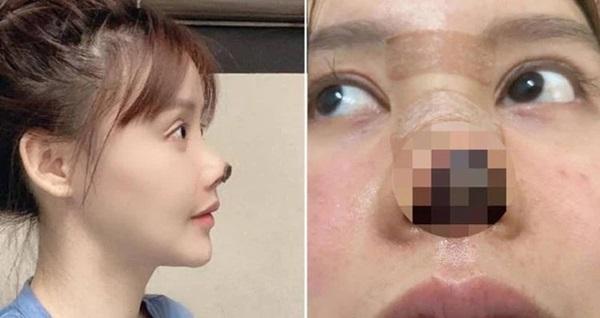 Nữ diễn viên Trung Quốc phẫu thuật thẩm mỹ tới nỗi rụng cả mũi, ngượng không dám thò mặt ra đường-1