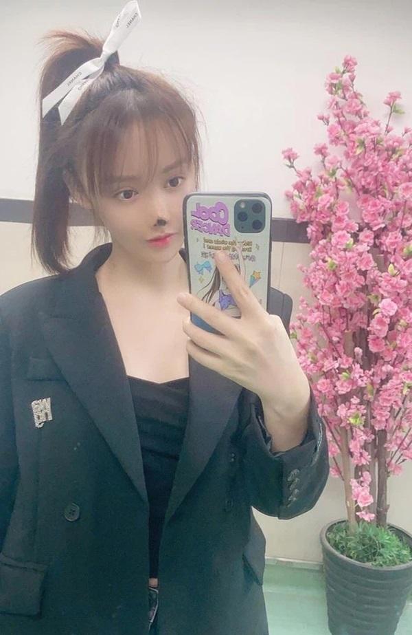 Nữ diễn viên Trung Quốc phẫu thuật thẩm mỹ tới nỗi rụng cả mũi, ngượng không dám thò mặt ra đường-2