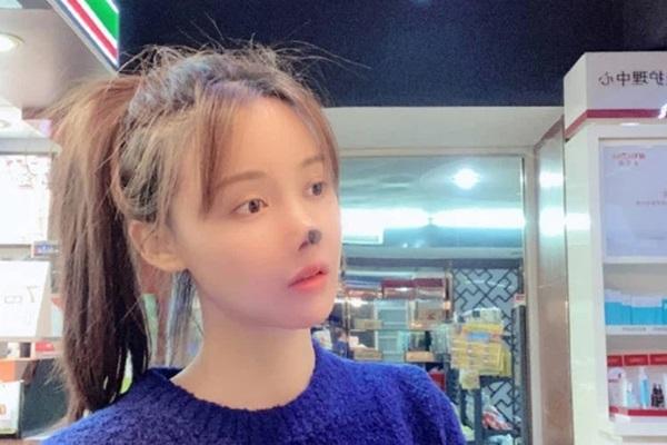 Nữ diễn viên Trung Quốc phẫu thuật thẩm mỹ tới nỗi rụng cả mũi, ngượng không dám thò mặt ra đường-3