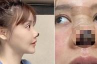 Nữ diễn viên Trung Quốc phẫu thuật thẩm mỹ tới nỗi rụng cả mũi, ngượng không dám thò mặt ra đường