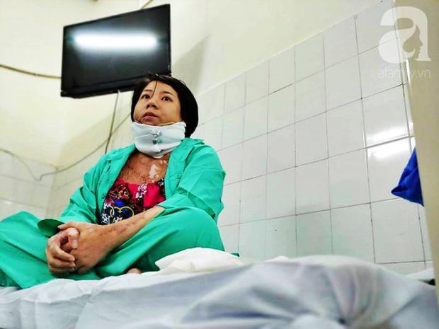 Người phụ nữ trẻ bị chồng tẩm xăng đốt, trải qua 18 ca mổ đau đớn như chết đi sống lại và sự tái sinh nhờ tình mẫu tử thiêng liêng-1