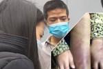 Hà Nội chỉ đạo xử lý vụ bé gái 12 tuổi nghi bị bạo hành, xâm hại tình dục ở quận Hà Đông-3