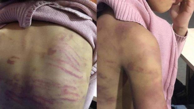 Hà Nội chỉ đạo xử lý vụ bé gái 12 tuổi nghi bị bạo hành, xâm hại tình dục ở quận Hà Đông-2