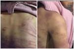 Mẹ bé gái 12 tuổi bị bạo hành, xâm hại tình dục ở Hà Nội: Vớ được cái gì ở ngoài đường là đánh nó bằng cái đấy-9