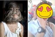 Cô bé 'người sói' với khuôn mặt nhiều lông lá nhất thế giới sau hơn 10 năm xuất hiện trở lại với vẻ ngoài cùng cuộc sống gây kinh ngạc