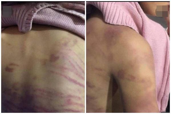 Phẫn nộ trước lời khai rùng rợn của kẻ bạo hành, hiếp dâm bé gái 12 tuổi ở Hà Nội-2