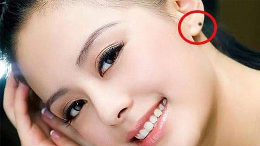 Nốt ruồi ở tai nói trước tương lai của bạn?-2