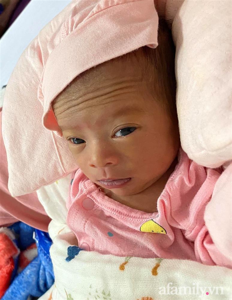 Bé gái Kiên Giang sinh non gầy guộc, da đen nhẻm, nhăn nheo như chú khỉ con, nhưng chỉ hơn 2 tháng sau nhìn bé ai cũng ngỡ ngàng-2