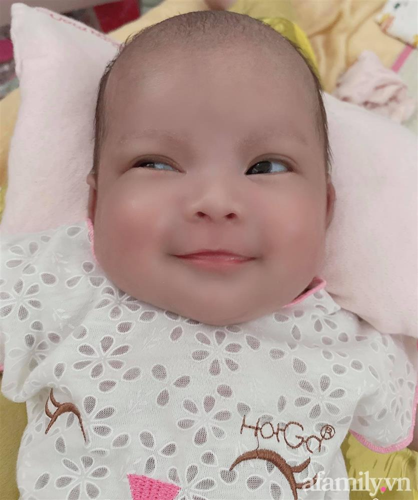 Bé gái Kiên Giang sinh non gầy guộc, da đen nhẻm, nhăn nheo như chú khỉ con, nhưng chỉ hơn 2 tháng sau nhìn bé ai cũng ngỡ ngàng-8