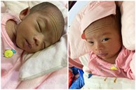 Bé gái Kiên Giang sinh non gầy guộc, da đen nhẻm, nhăn nheo như 'chú khỉ con', nhưng chỉ hơn 2 tháng sau nhìn bé ai cũng ngỡ ngàng