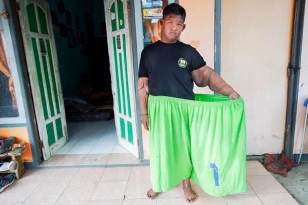 Cậu bé béo nhất thế giới nặng gần 200kg gây choáng với ngoại hình mới chỉ sau 4 năm giảm cân, nhìn hình không ai dám tin là cùng một người-10