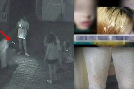 Nữ sinh 15 tuổi bị bạn cùng trường hành hung đến thân tàn ma dại chỉ bởi vì xuất thân khác biệt của mẹ ruột