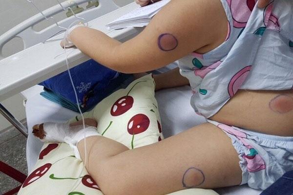 Bé 5 tuổi ở Quảng Bình bị nhiễm vi khuẩn ăn thịt người sau khi bị gà mổ-1