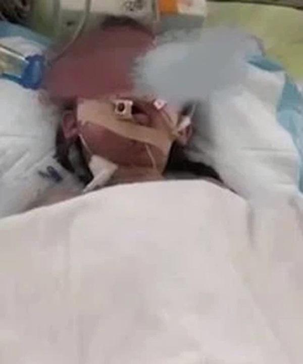 Bé gái 4 tuổi ngã vào máy trộn xi măng nguy kịch, hình ảnh nạn nhân ở hiện trường khiến người nhà đau lòng tột độ-3