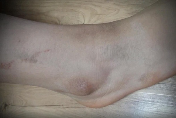 Vụ bắt nạt gây xôn xao: Nữ sinh bị đánh đập tàn bạo, đổ cà phê vào mặt, biết lý do mà ai cũng thương xót-2