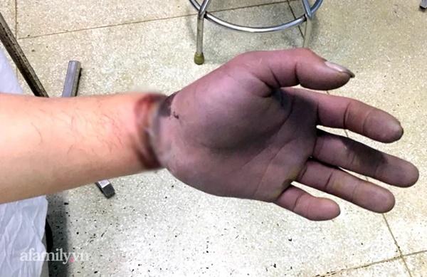 Cứu thanh niên gặp tai nạn kinh hoàng, cuộn kẽm siết chặt cổ tay đứt toàn bộ gân cơ duỗi-1
