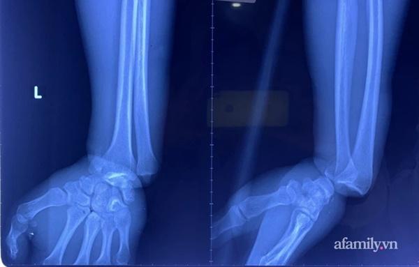 Cứu thanh niên gặp tai nạn kinh hoàng, cuộn kẽm siết chặt cổ tay đứt toàn bộ gân cơ duỗi-2