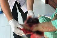 Cứu thanh niên gặp tai nạn kinh hoàng, cuộn kẽm siết chặt cổ tay đứt toàn bộ gân cơ duỗi