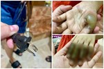 Phích cắm điện phát nổ khiến bàn tay bé gái cháy đen không thể cử động và lời cảnh báo với các phụ huynh có con nhỏ