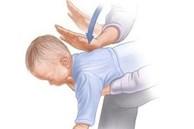 Clip hướng dẫn sơ cứu trẻ bị nghẹn, hóc dị vật nhanh, chuẩn xác