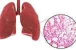 Phổi là 'chiếc máy hút bụi' của cơ thể: BS mách bạn cách làm sạch mỗi ngày để không bị bệnh