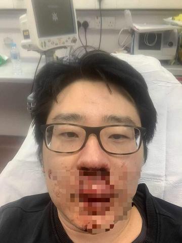 Giảng viên Trung Quốc bị đánh chảy máu mũi ở Anh | Tin tức Online