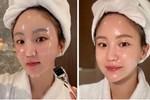 Chuyên gia Hàn Quốc chỉ rõ 5 lầm tưởng về vitamin C, chị em chớ nghe quảng cáo nếu không muốn da 'toang' sau vài ngày sử dụng