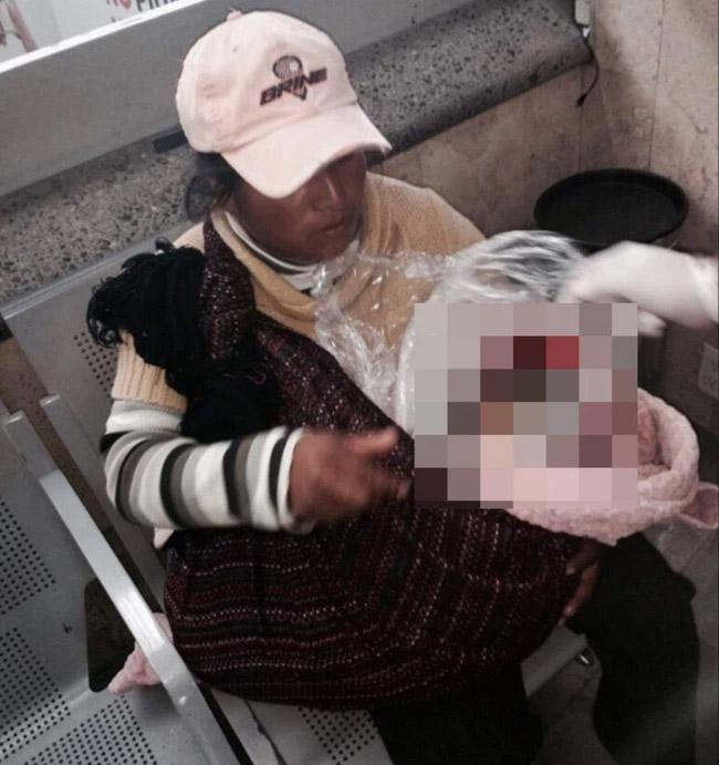 Người phụ nữ nghèo ngồi ôm khư khư bọc nilon ở bến xe, lại gần nhìn thấy thứ trong chiếc túi người dân hoảng hốt báo cảnh sát ngay lập tức-1