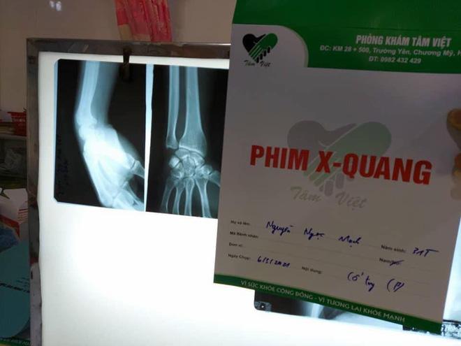 Người hùng Nguyễn Ngọc Mạnh bị rạn xương ngón tay, chưa bắt đầu công việc bình thường-3