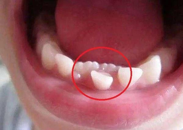 Kéo răng chạy lạc ở vòm họng về trồng đúng vị trí: Clip khiến MXH ngỡ ngàng vì tưởng trò đùa nhưng hóa ra lại là phương pháp hoàn toàn có thật-2