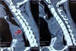 5 dấu hiệu cho thấy ung thư tuyến giáp đang lớn dần trong cơ thể-3
