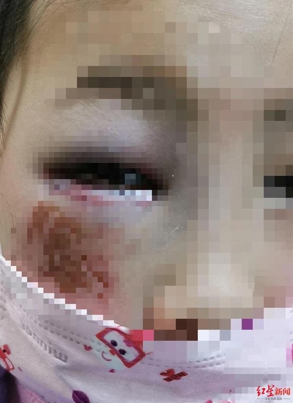 Bé gái 8 tuổi bị cô giáo đánh đến mức suýt mù chỉ vì làm Toán sai, hình ảnh được chia sẻ khiến phụ huynh phẫn nộ-1