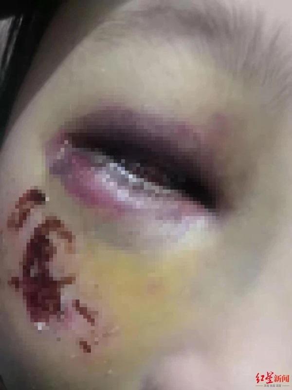 Bé gái 8 tuổi bị cô giáo đánh đến mức suýt mù chỉ vì làm Toán sai, hình ảnh được chia sẻ khiến phụ huynh phẫn nộ-2
