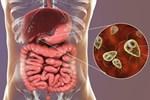 Ăn thịt bò tái, chàng trai bị đau bụng suốt nửa năm, bác sĩ khiếp sợ khi thấy ký sinh trùng di chuyển trong dạ dày-3