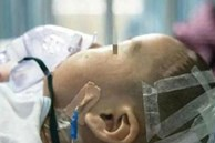 Bé 8 tháng tuổi bị xuất huyết não, đi khám bác sĩ chỉ rõ cách dỗ dành của người bà chính là nguyên nhân hại cháu