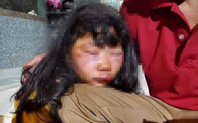 Bắt hung thủ đánh nữ sinh lớp 6 bầm dập, nguyên nhân vụ án có thể vì nghi phạm có tình ý với nạn nhân-1