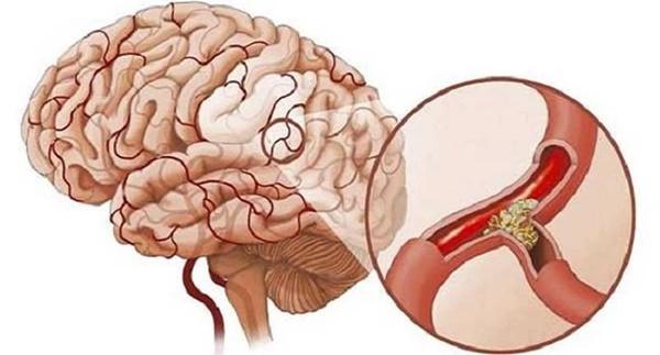 Sau 40 tuổi, cơ thể có 4 thay đổi này thì tốt nhất nên đi kiểm tra não-1