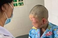 Bé trai 10 tuổi nghịch theo clip trên mạng, tự mua cồn về đốt gây bỏng toàn bộ mặt